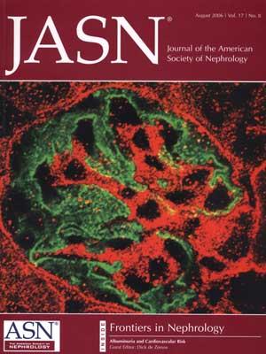 Картинки по запросу Journal of the American Society of Nephrology