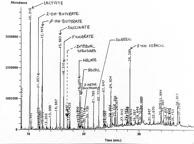 Gas Chromatography -- Case 104