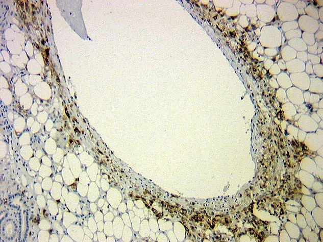 Mature adipocytes fibrovascular trabeculae
