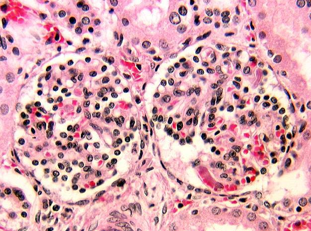 Lower nephron nephrosis definition of marriage