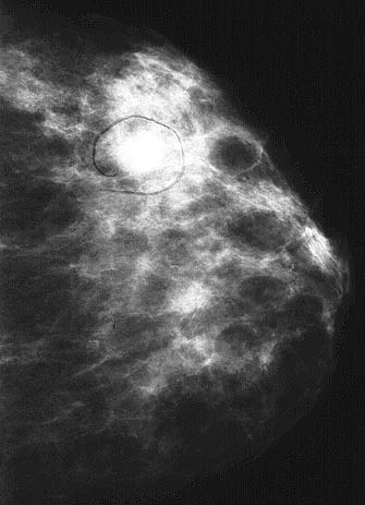 Mammography Revealed A 1 2 Cm Oval Nodule