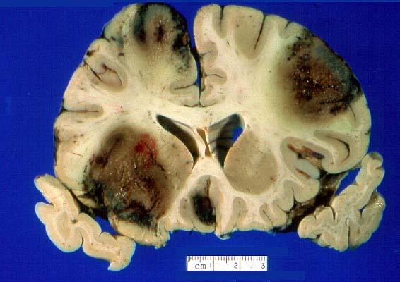 Gross Description -- Case 156