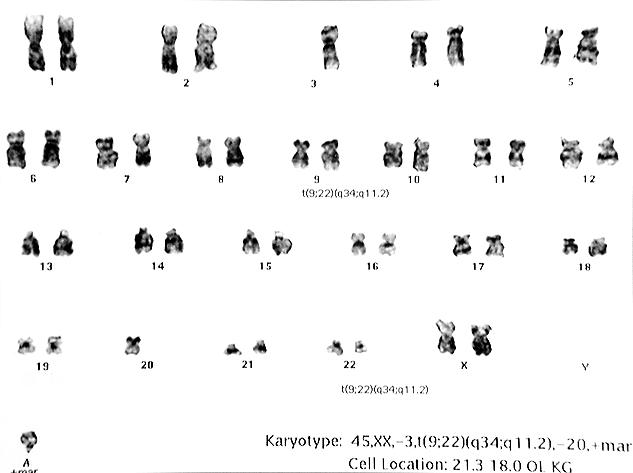 Examination Of The Karyotype This Cell Revealed Philadelphia Translocation T922q34q112 Was Designated As Follows