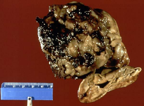 Case 180 --Neuropathology Case