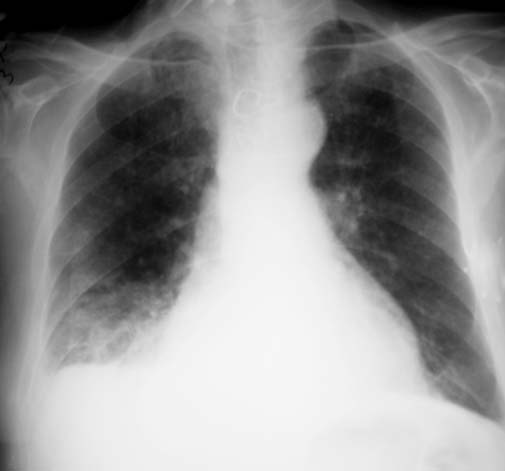 tuberculosis x ray. X-ray of the chest taken about