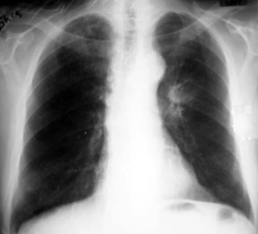 Tuberculosis X Ray