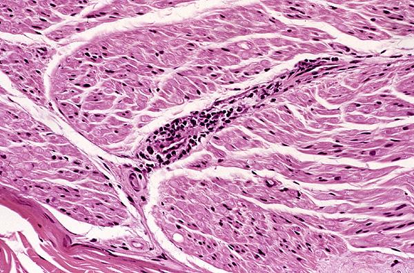 Microscopic Description Case