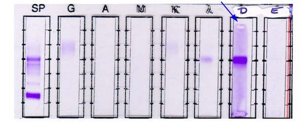 Pathology Outlines Plasma Cell Myeloma Multiple Myeloma