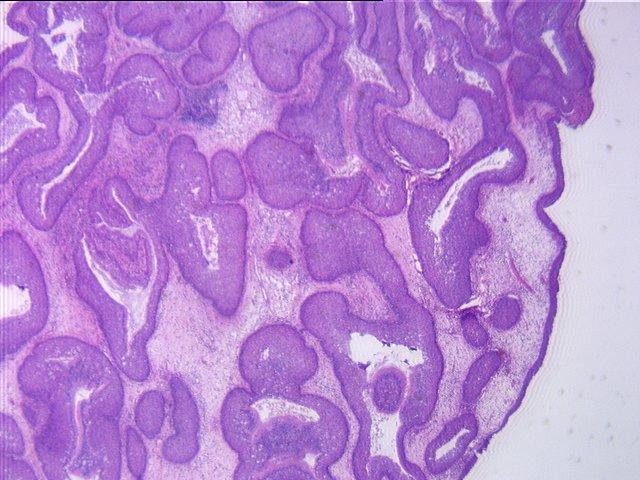 inverted papilloma sinus pathology