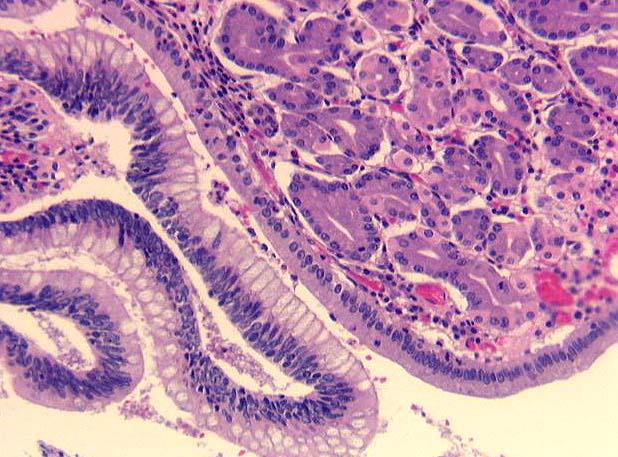 microscopic description case 60
