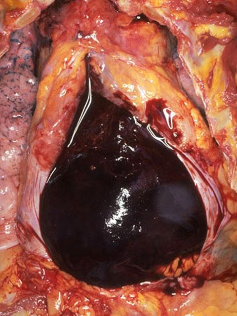 Pathologic Findings Case 84
