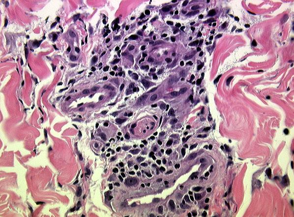 Microscopic Description -- Case 87