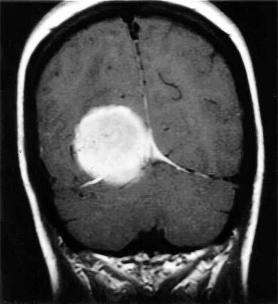 Case 20 --Neuropathology Case