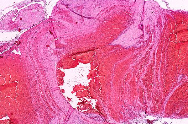 Case 74 Neuropathology Case